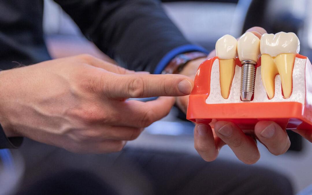 10 preguntas y respuestas sobre los implantes dentales