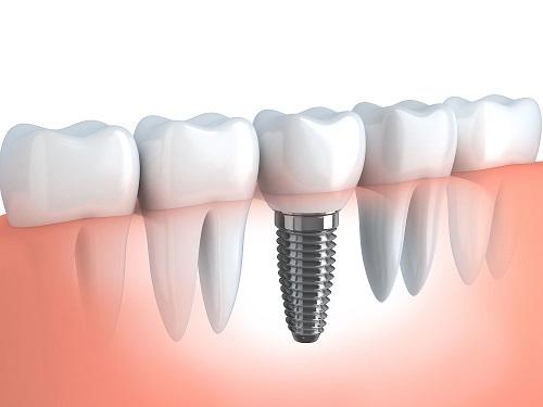 Precio y Costo de los implantes dentales en El Salvador 2020